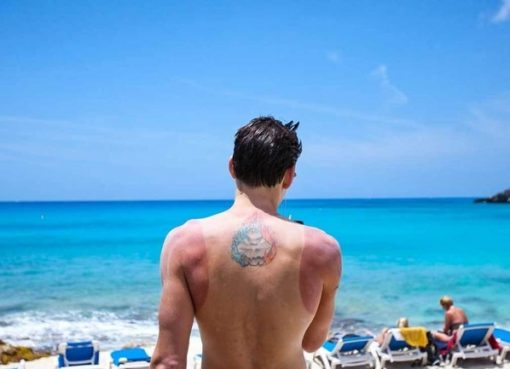 Remedies You Can Use To Get Rid of Sun Burn- viral blog